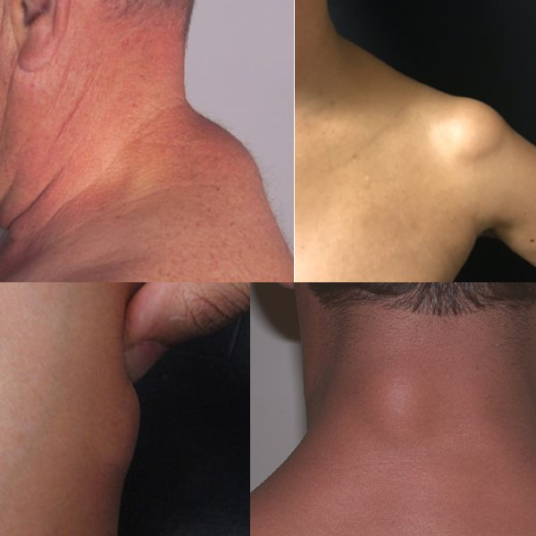 what is lipoma skin lump